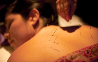 Experience deep relaxation, stress reduction and general positive health effect with Acupuncture.